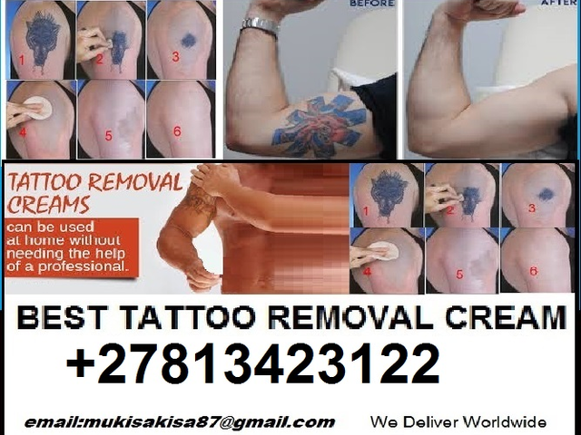 TATTOO SCARS REMOVAL CREAM  +27813423122 JOHANNESBURG